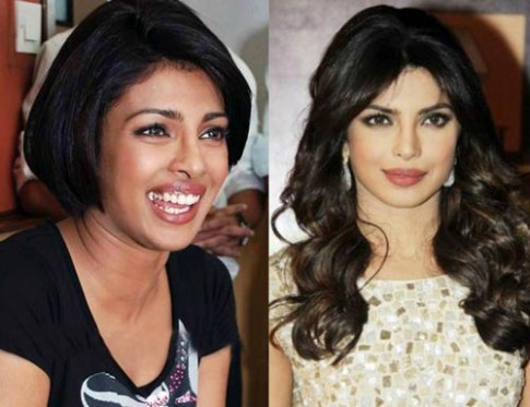 Bollywood Actresses That Got Skin Whitening Treatments ...