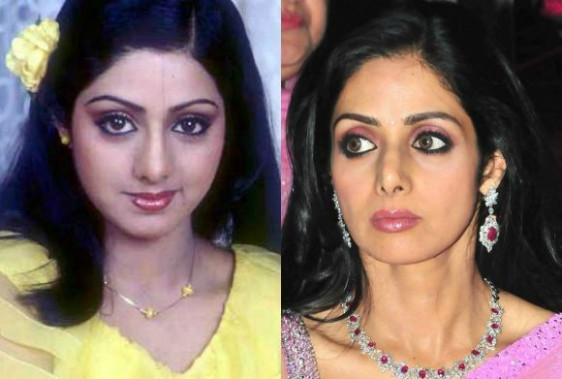Bollywood Stars Before and After Cosmetic Surgery | DESIblitz