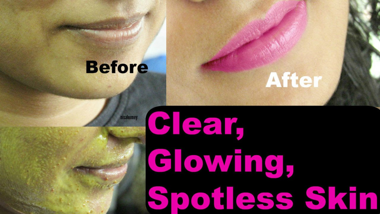 How to get clear, glowing, & spotless skin at home ...