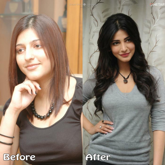 Top 10 Bollywood Plastic Surgeries Disasters: Before ...