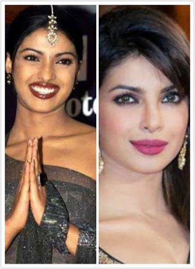 Top 8 Bollywood Actresses Who Got Skin Whitening Fairness ...